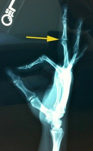 x-ray of my broken finger